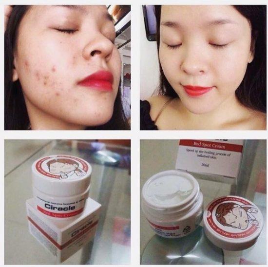 Kem thuốc trị mụn đỏ mụn mủ mụn sưng đau Ciracle Red Spot Cream