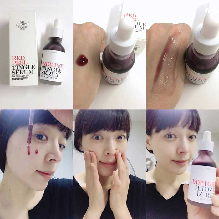 Tinh chất Red Peel Tingle Serum By Sonatural