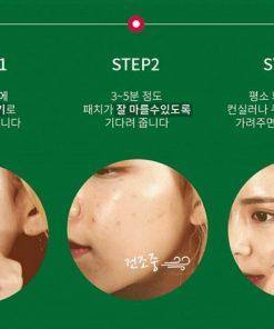 gel-che-khuyet-diem-not4u-real-skin-15