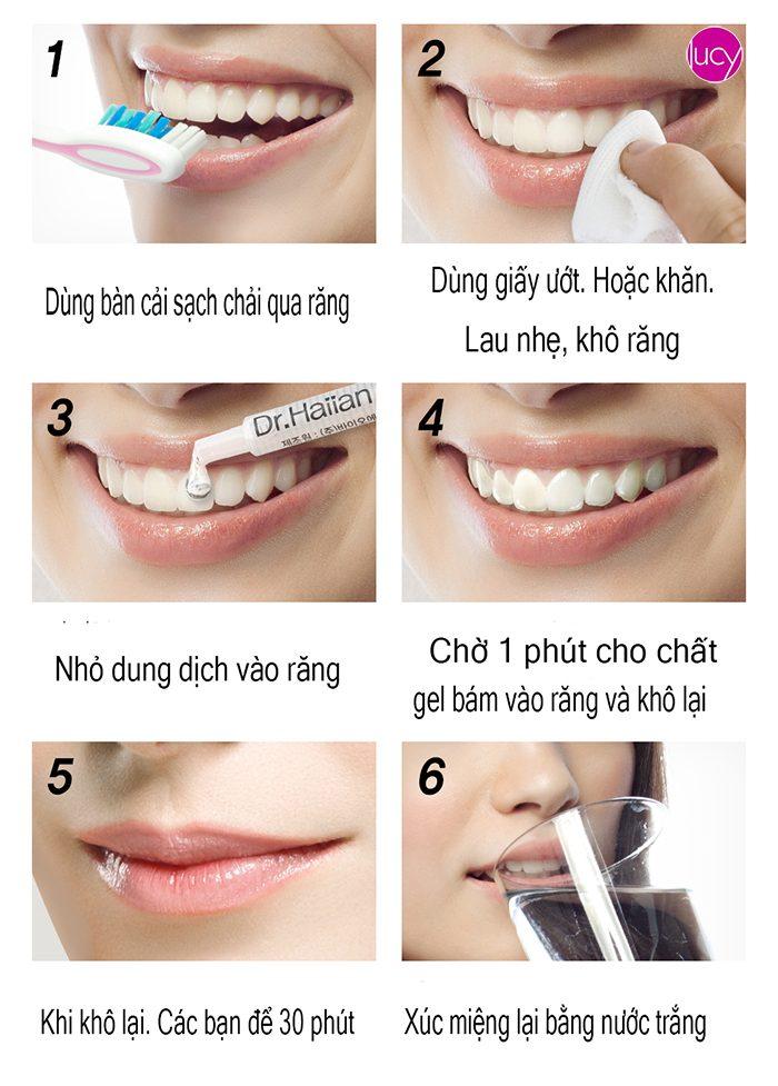 gel-lam-trang-rang-dr-haiian-proessional-clinic-4