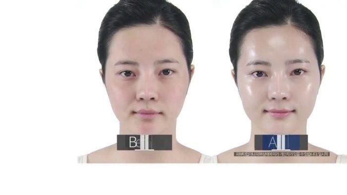 mat-na-doctorslab-returning-platinum-mask-14