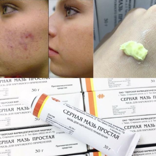 Kem ngăn ngừa mụn lưu huỳnh CEPHAR Nga 30g