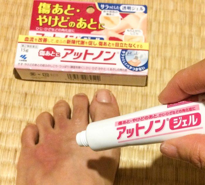 Kem trị sẹo Kobayashi Nhật Bản
